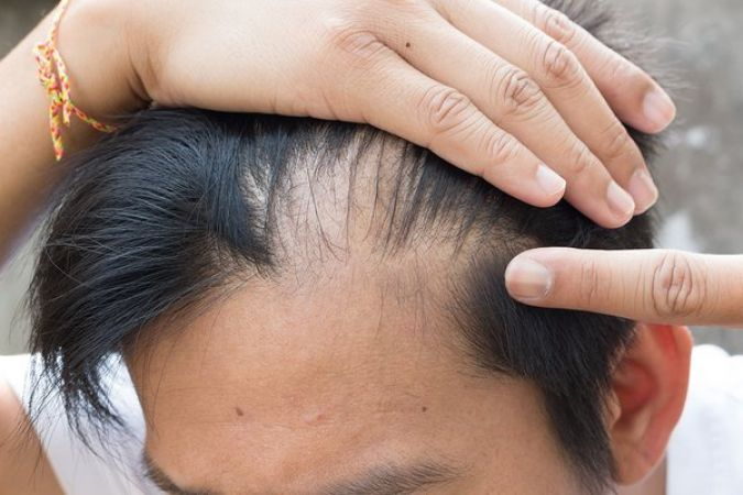 SANDALWOOD OIL HELPS TO GET RID OF THE PROBLEM OF BALDNESS